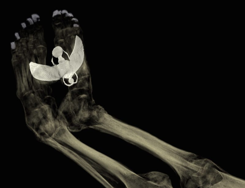 ) CT scan of the feet of Tayesmutengebtiu, also called Tamut, to show the metal covers on her toenails and the large amulet of the winged scarab beetle Khepri