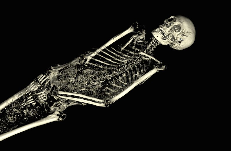 The CT scan of the mummy of an adult male (name unknown), showing his skeleton